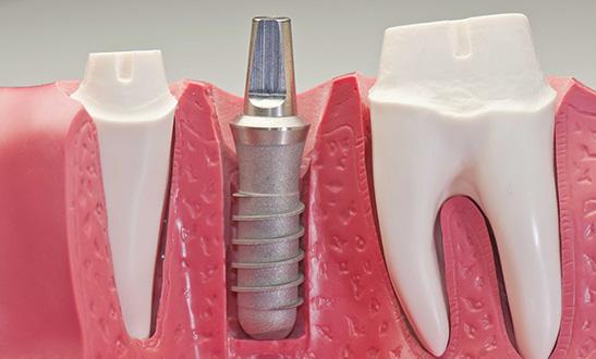 Implantologia studio dentistico massella verona