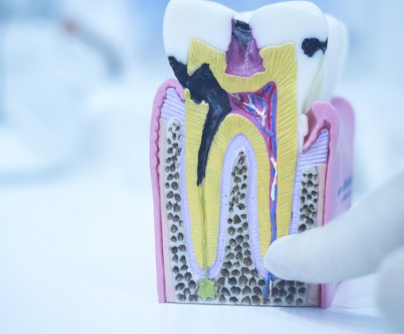 photodune-11846825-dental-tooth-model-cast-showing-decay-enamel-roots-s-580x580